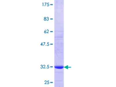 SLC7A7 Protein