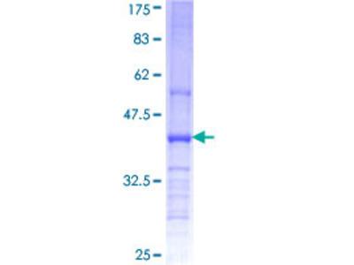 CHST11 Protein