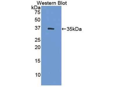 HSD17 / HSD17B1 Antibody
