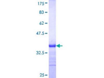 NAGPA Protein