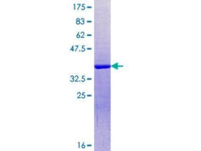 SRRM1 Protein