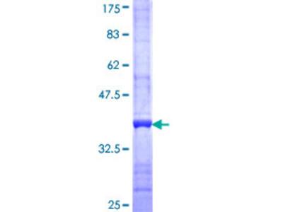 ABCA6 Protein