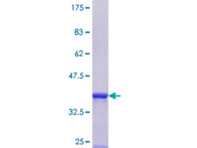 SRP54 Protein