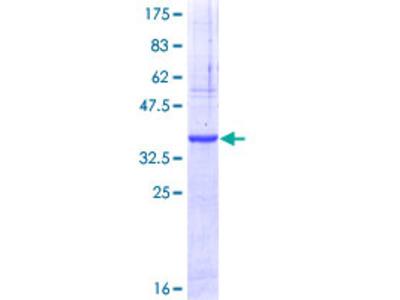 CBLN2 / Cerebellin 2 Protein