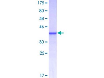 ADAMTS8 Protein