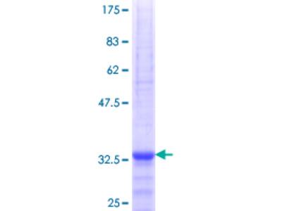 SLC25A21 / ODC1 Protein