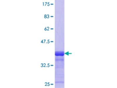 CHST12 Protein
