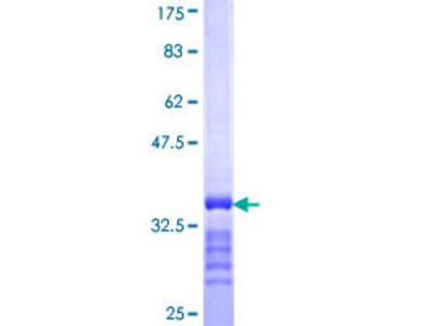SLC13A3 Protein
