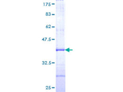 AACS Protein
