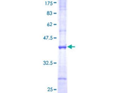 SLC3A1 / ATR1 Protein