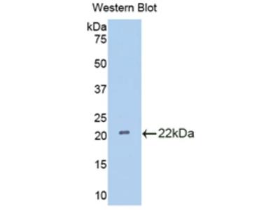 IL18BP Antibody