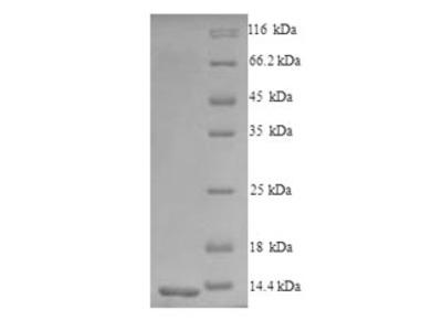 CCR5 Protein
