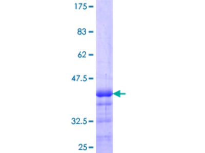 AVEN / PDCD12 Protein