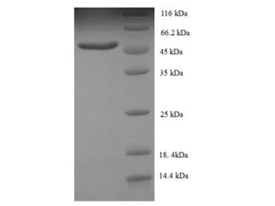 SMARCB1 / INI1 Protein