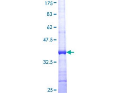 AGPAT3 Protein