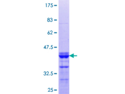 HSD-1 / SPAG8 Protein
