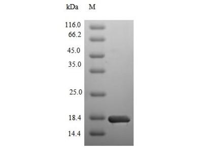 SMARCA4 / BRG1 Protein