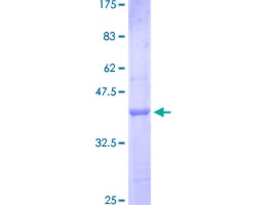IL1RAPL1 Protein