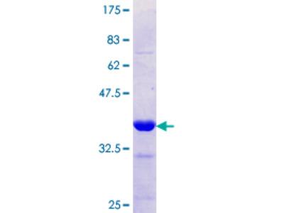 SLC12A1 / NKCC2 Protein