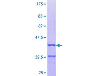 DIO3 Protein