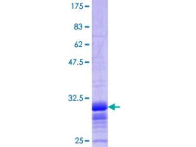 SLC2A2 / GLUT2 Protein