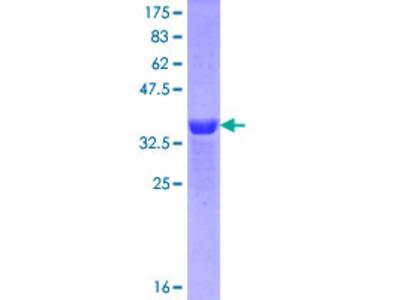 MEIS1 Protein