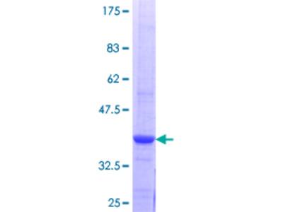 SMYD3 Protein
