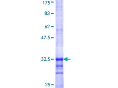 SLC35D2 Protein