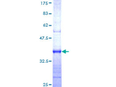 HERC4 Protein