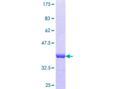 SAMD4A Protein
