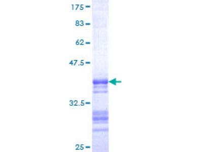 SST / Somatostatin Protein