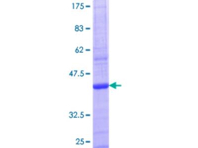 ACSS2 / ACAS2 Protein