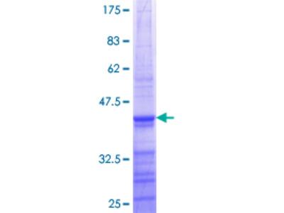 SCNN1G / ENaC Gamma Protein