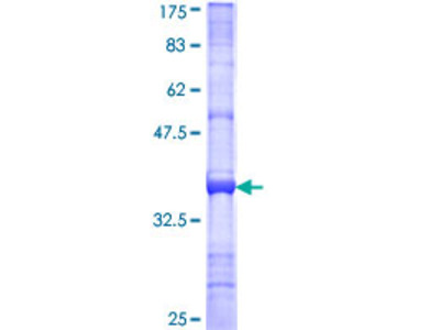 NDST4 Protein