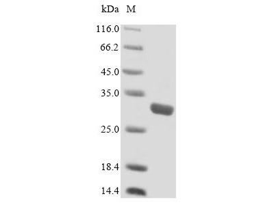 SLC25A20 / CACT Protein