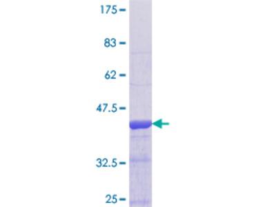 RAIG2 / GPRC5B Protein