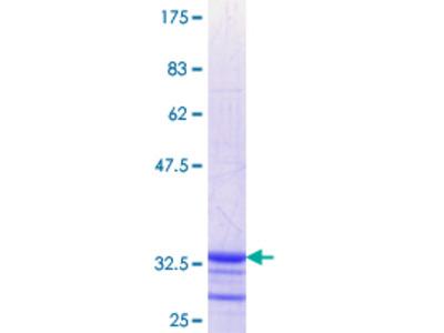 SLC6A11 / GAT-3 Protein