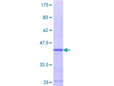 SULT1C4 / Sulfotransferase 1C4 Protein