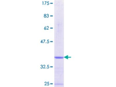 PKIA Protein