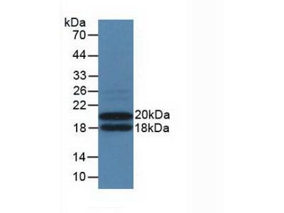 IL3RA / CD123 Antibody
