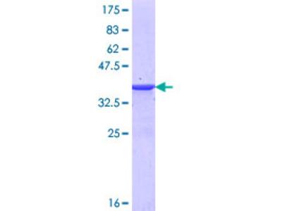 MYLK3 Protein