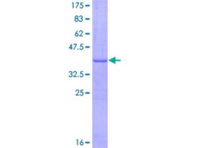SLC14A2 / UTR Protein