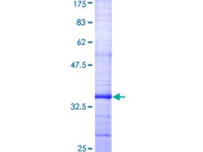 GJB1 / CX32 / Connexin 32 Protein
