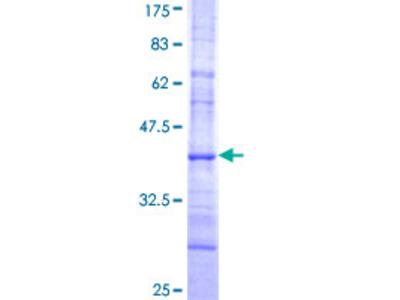 IKBKE / IKKI / IKKE Protein