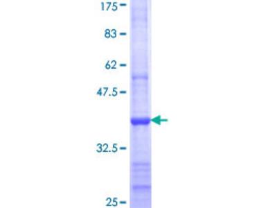 DEGS1 Protein