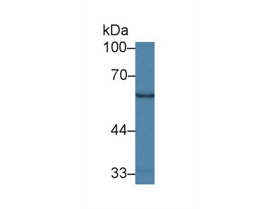 GALC / Galactocerebrosidase Antibody