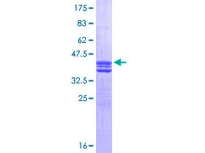 E2F1 Protein