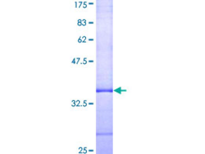 ADORA3 / Adenosine A3 Receptor Protein