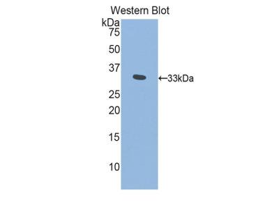 PITRM1 / MP1 Antibody