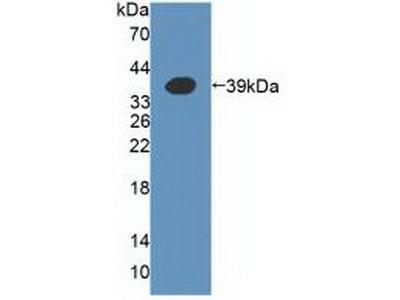A4GALT Antibody